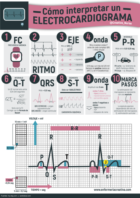 como-interpretar-un-ecg2